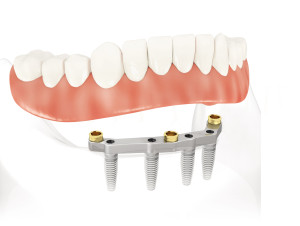 implant dentures and teeth in a day