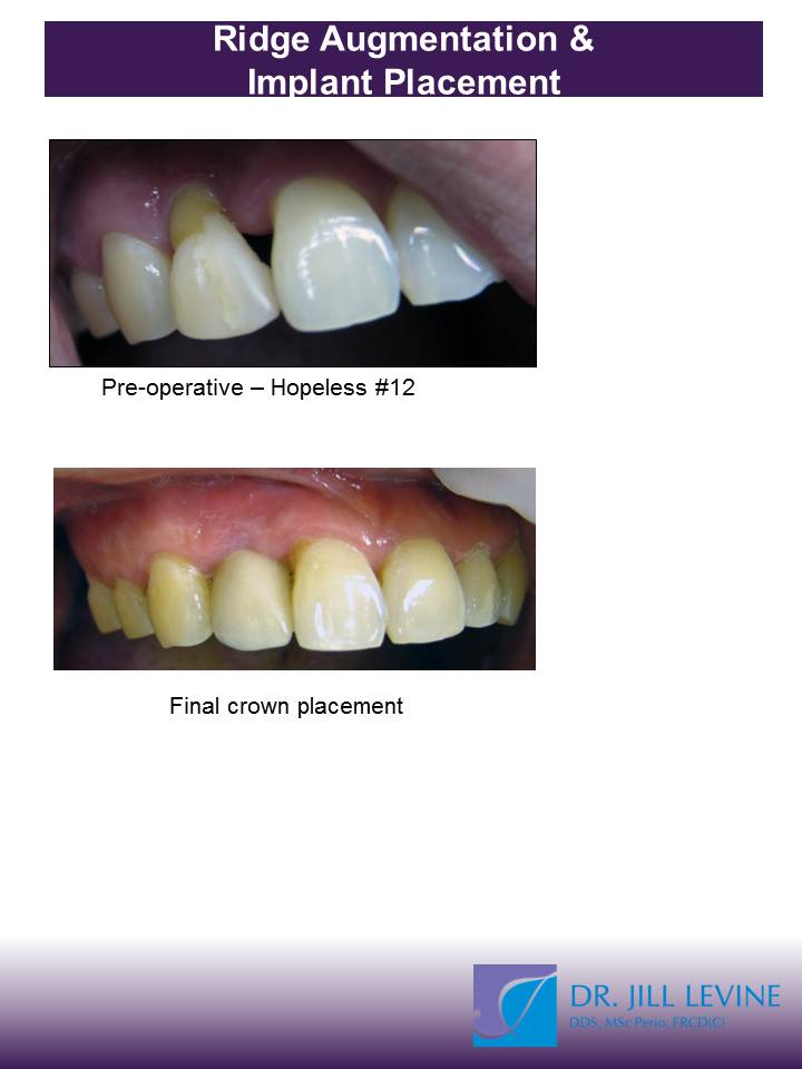 Ridge Augmentation and Dental Implant
